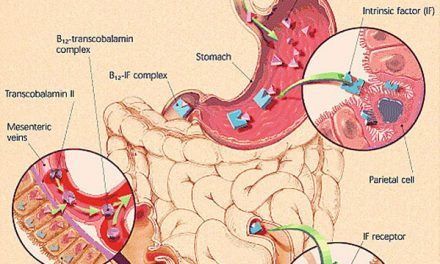 Gastric Cancer and Pernicious Anaemia